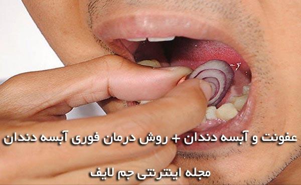 آبسه دندان , درمان فوری آبسه دندان