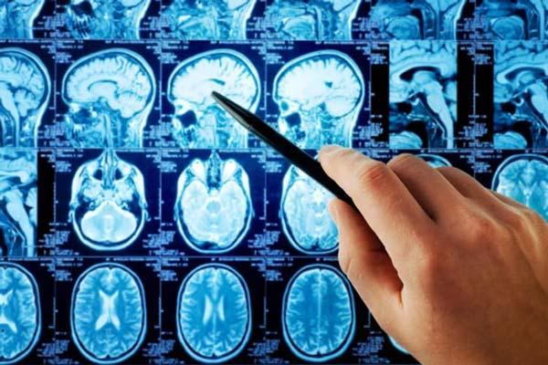 درمان تومور مغزی ، جراحی تومور مغزی