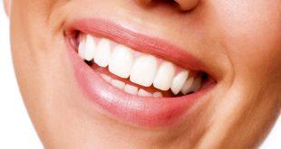 بلیچینگ دندان , سفید کردن دندان, هزینه بلیچینگ دندان