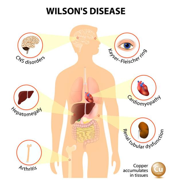 علائم بیماری ویلسون, علت ابتلا به ویلسون