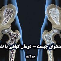 پوکی استخوان چیست + درمان گیاهی با طب سنتی