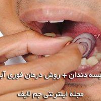 عفونت و آبسه دندان + روش درمان فوری آبسه دندان