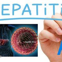 هپاتیت A چیست؟+ پیشگیری و درمان هپاتیت آ ( Hepatitis A )